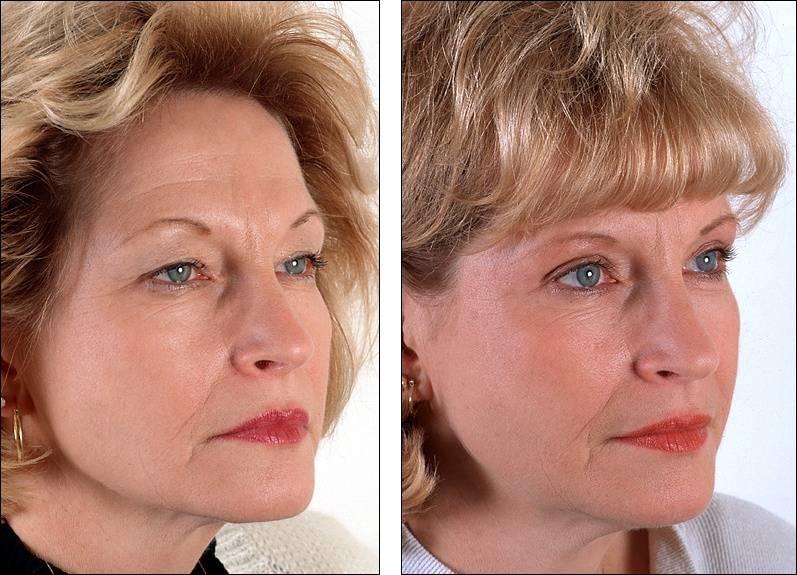 Гирудотерапия в косметологии: точки постановки, подготовка к процедуре, показания и противопоказания, побочные эффекты