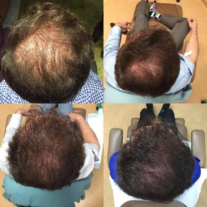 """Плазмолифтинг для волос: еще одно """"чудо-средство"""" или действительно работающая процедура?"""
