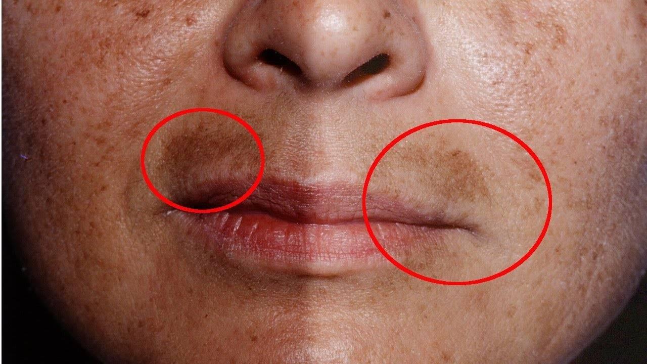 Хлоазма на лице — причины и лечение в домашних условиях. хлоазма