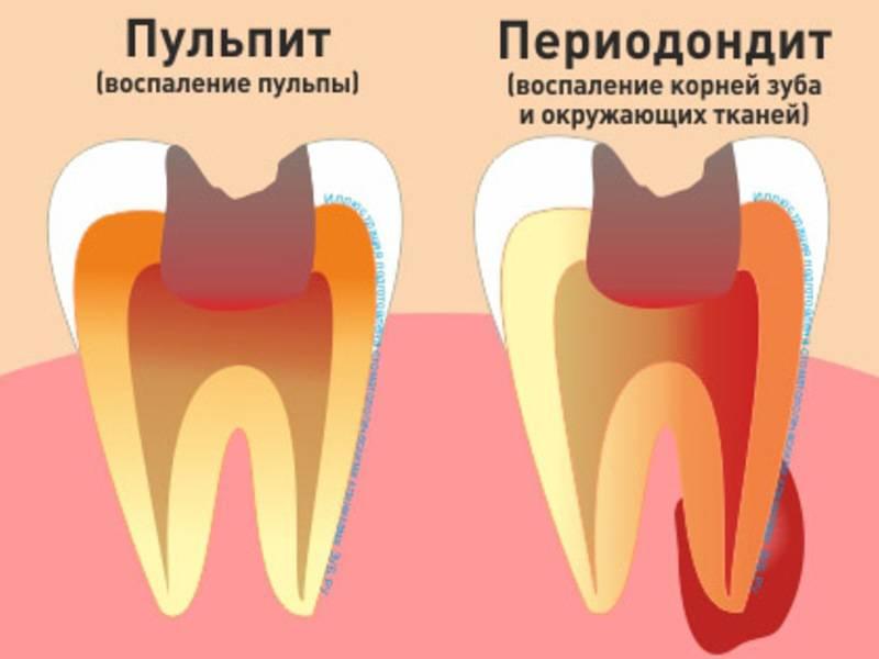 Методы лечения кариеса и причины его появления