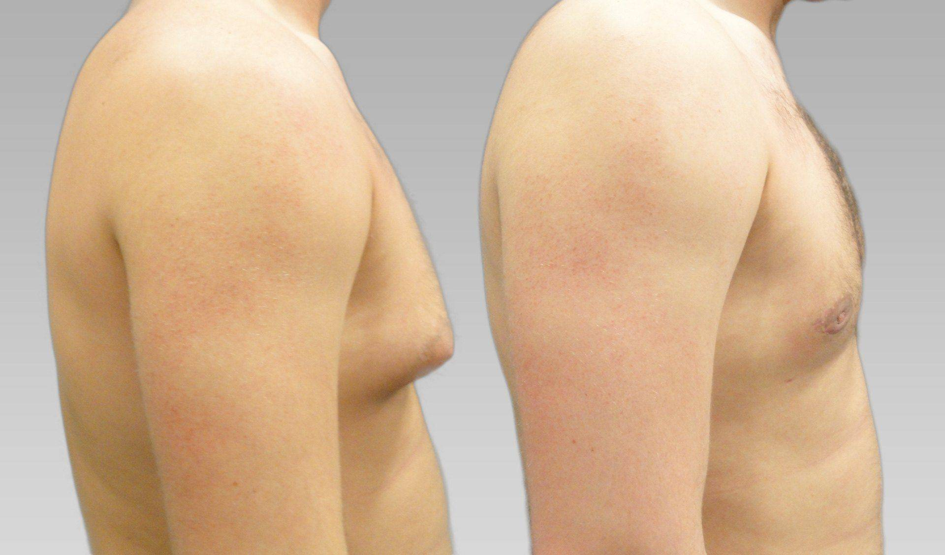 Операция при гинекомастии: показания и эффективность, проведение, восстановление после