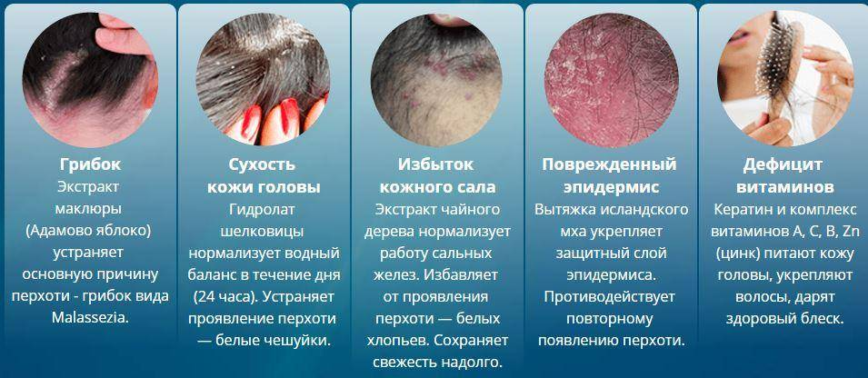 Жирная себорея: особенности заболевания и причины его возникновения