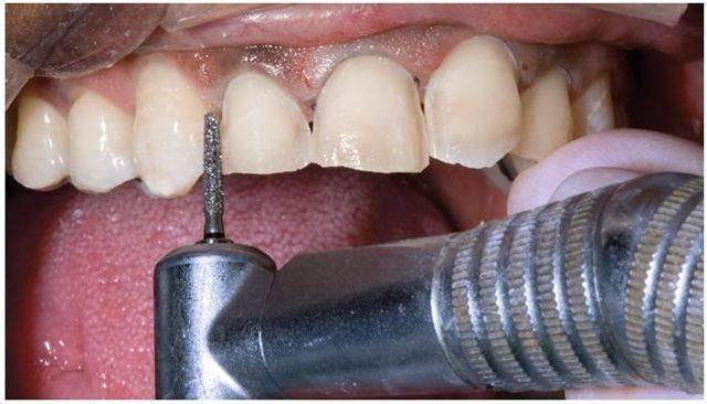 Что такое препарирование зубов и для чего проводят подобную процедуру?