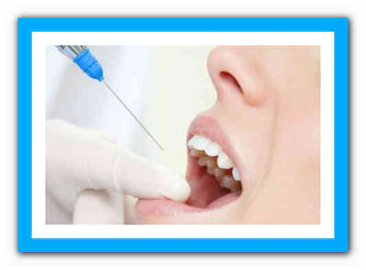 Через сколько проходит зубная анестезия