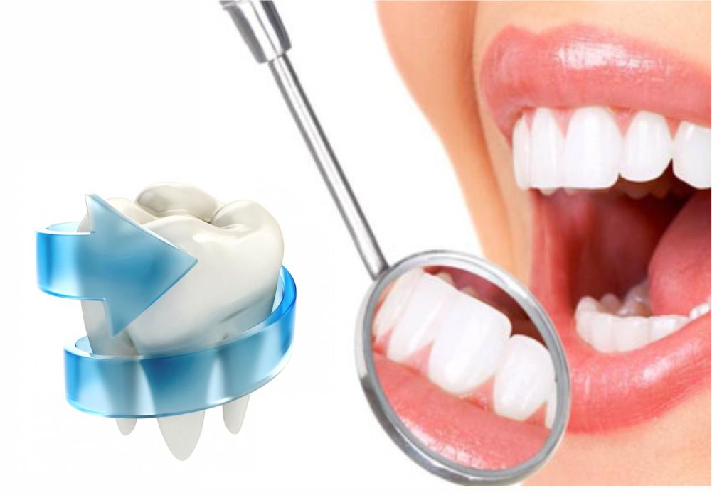 Реминерализация зубной эмали в стоматологии и в домашних условиях