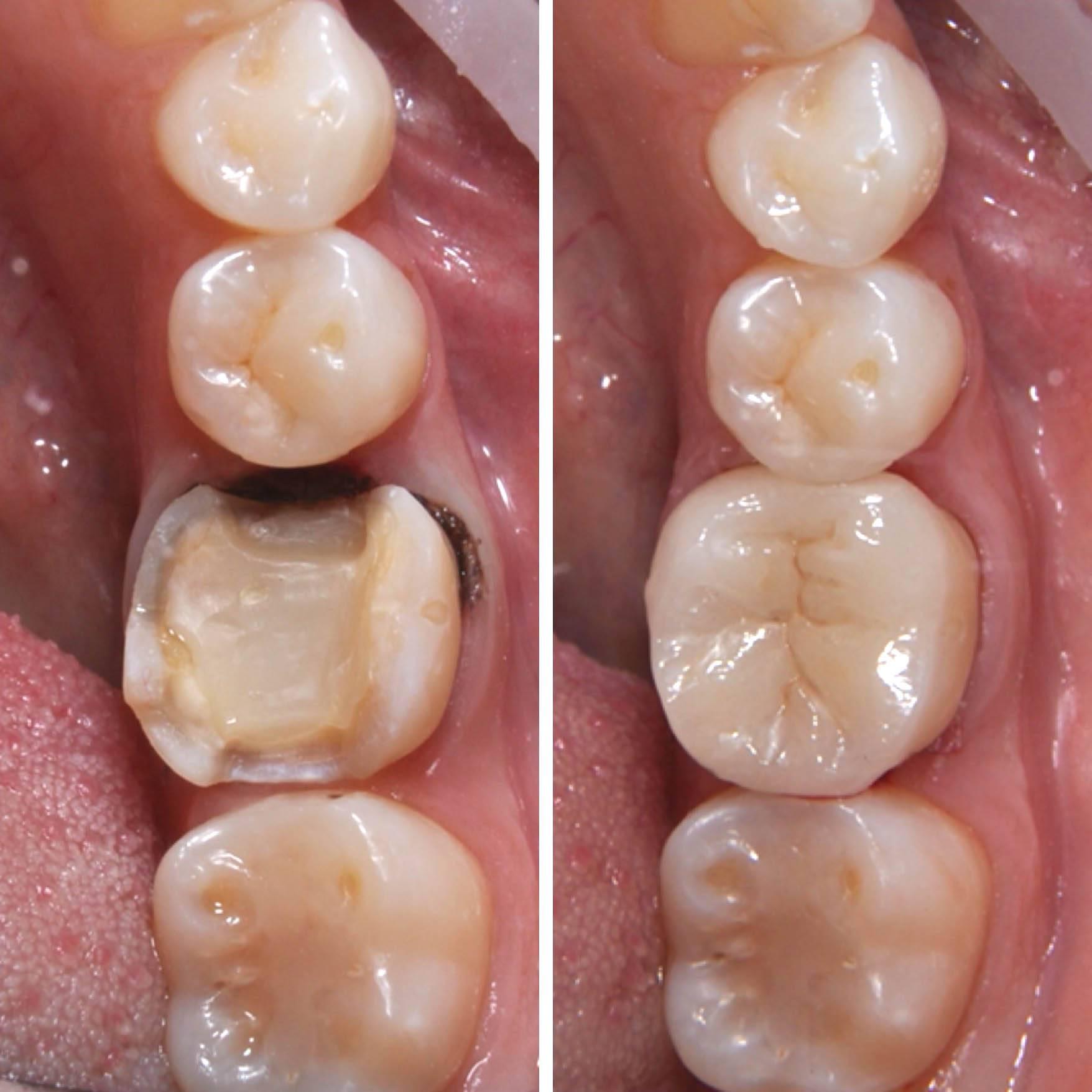 Сколько нельзя есть после пломбирования зуба