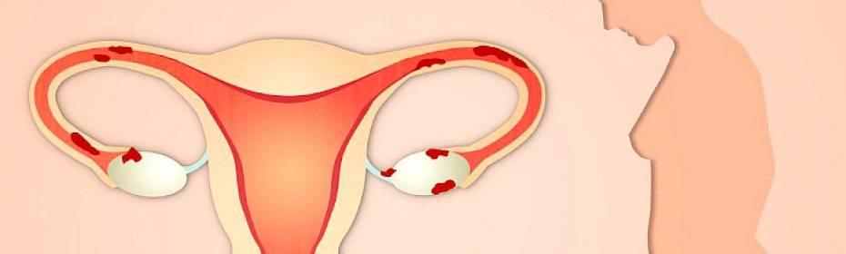 Сбой месячных эндометриоза