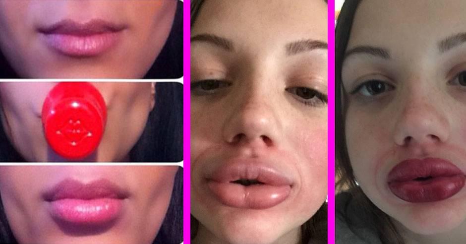 14 способов, как визуально увеличить губы, чтобы они казались пухлыми