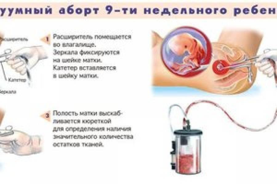 Месячные после прерывания беременности: восстановление цикла и возможные проблемы