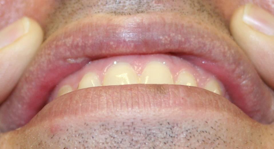 Белое пятно на губе внутри болит