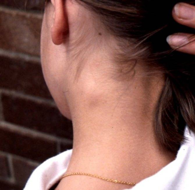 Что делать, если воспалился лимфоузел под ухом?