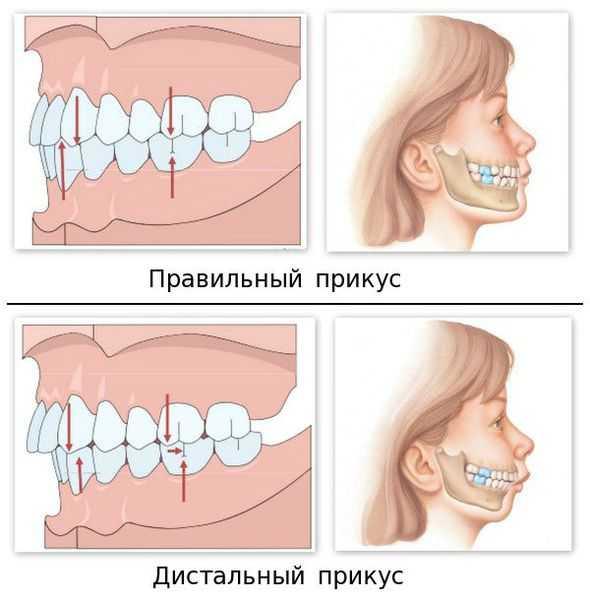 Виды правильного и неправильного прикуса зубов