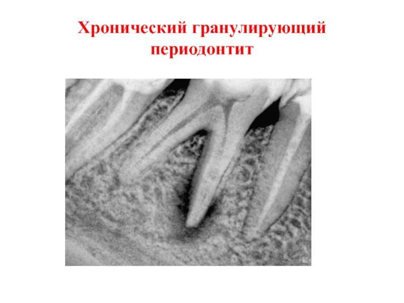 Острый и хронический апикальный периодонтит