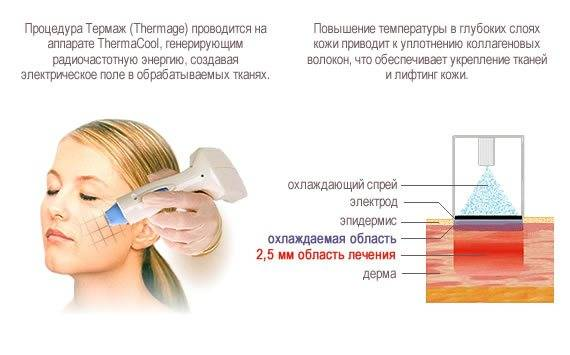 Термаж лица — что это за процедура, как делается, в чем разница с рф-лифтингом. фото, результаты, цена, отзывы