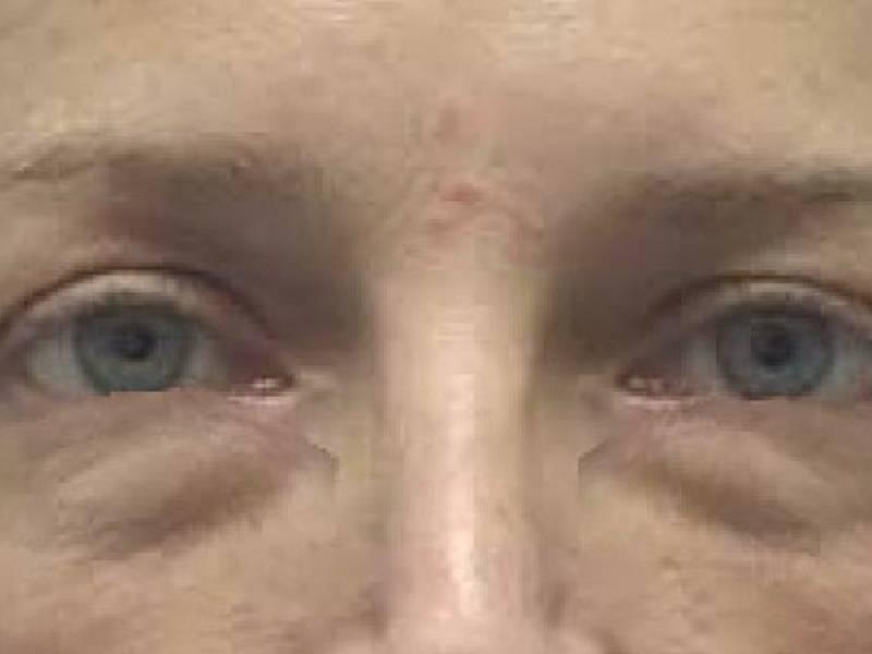 Причины появления у мужчин тёмных кругов под глазами и методы их устранения