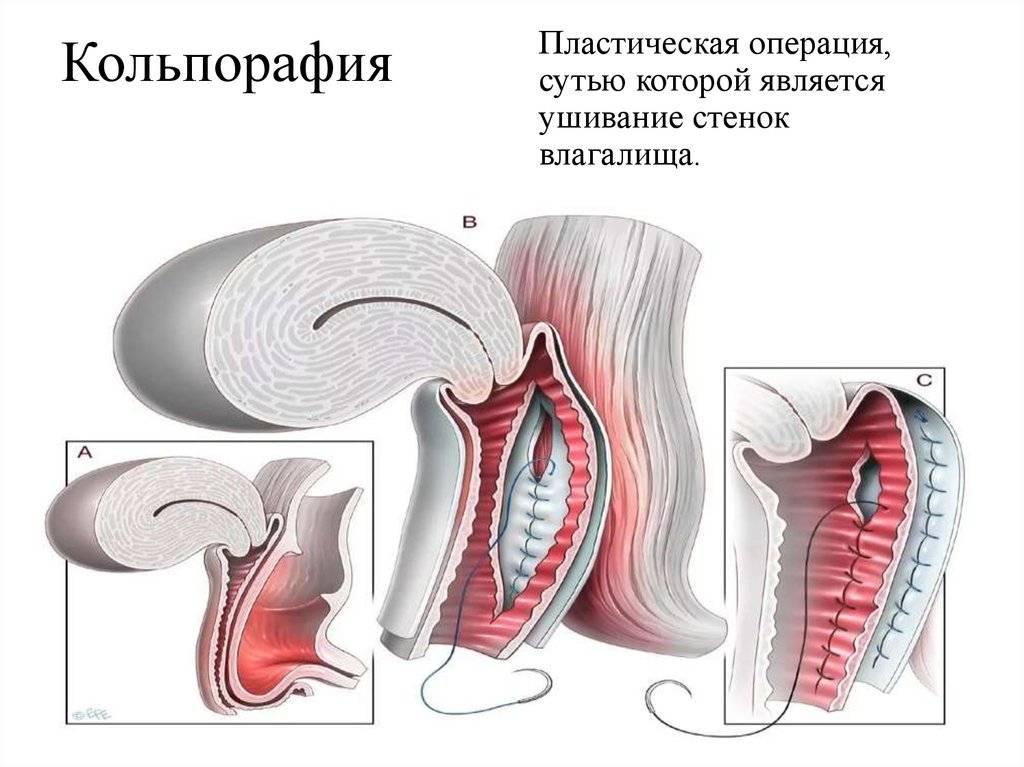 Опущение стенок влагалища: как проводится вагинопластика
