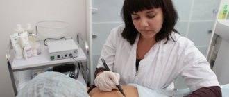Удаление бородавок и папилом электрокоагуляцией