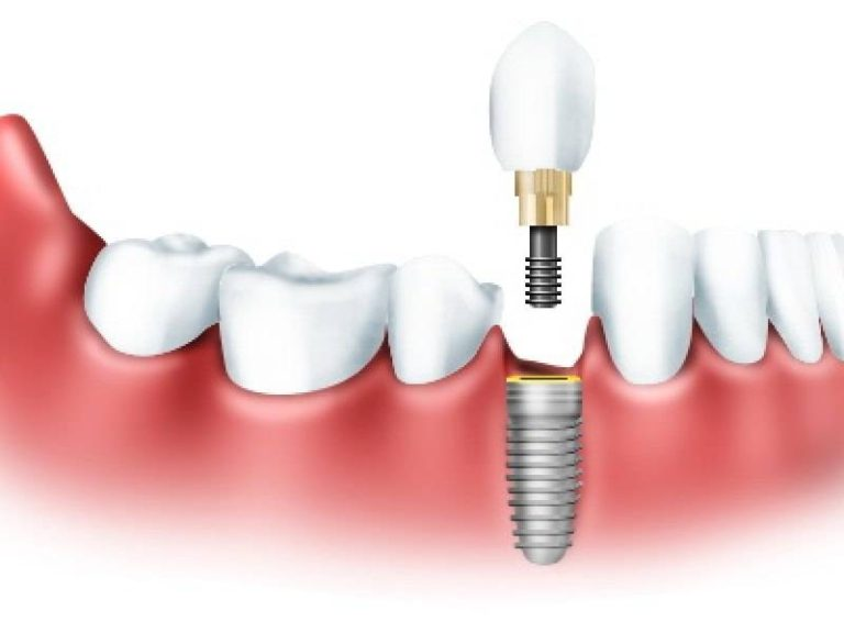 Соблюдение всех этапов имплантации зубов сделает улыбку более уверенной