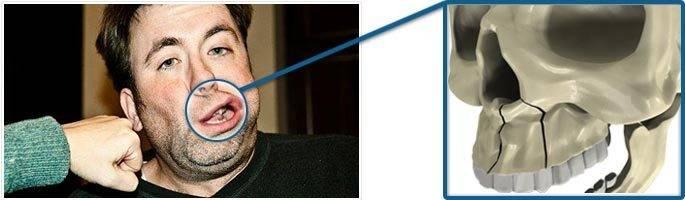 Перелом верхней челюсти - симптомы и лечение