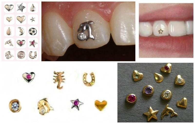 Сколько стоит поставить стразу в зуб. скайсы из украшения для зубов для взрослых превратились в общее увлечение молодежи