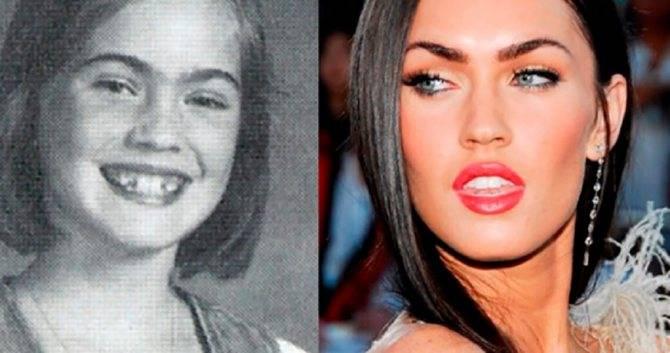 Меган фокс до и после пластики лица. фото, когда сделала пластику губ, глаз, носа, скул
