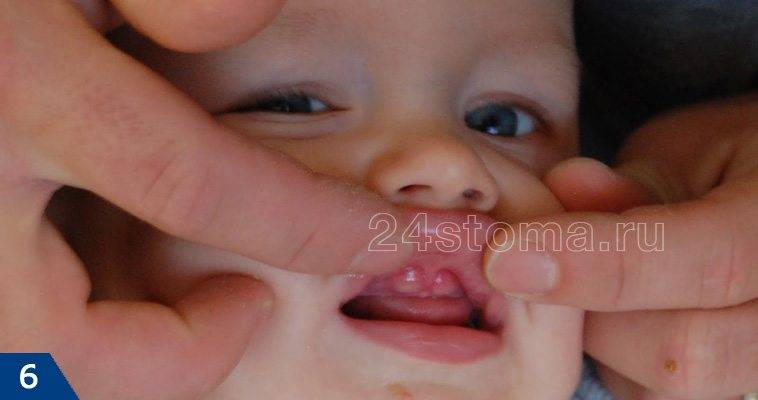 Посинение десен у малыша при прорезывании: опасно ли это и что с этим делать