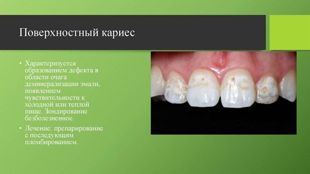 Дифференциальная диагностика кариеса зубов
