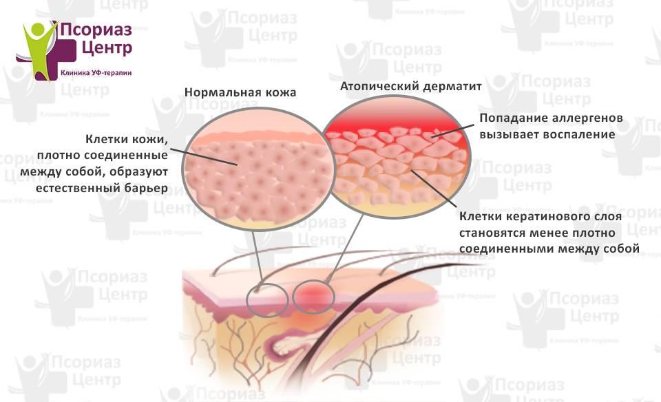 Дерматит — причины, симптомы и лечение дерматита
