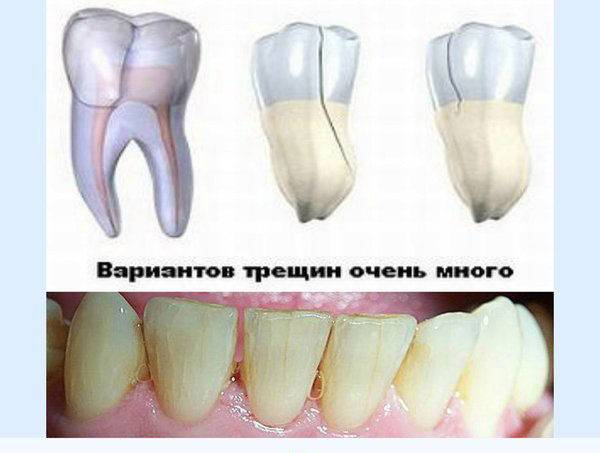 Укрепить десна, если шатаются зубы в домашних условиях: возможно ли?