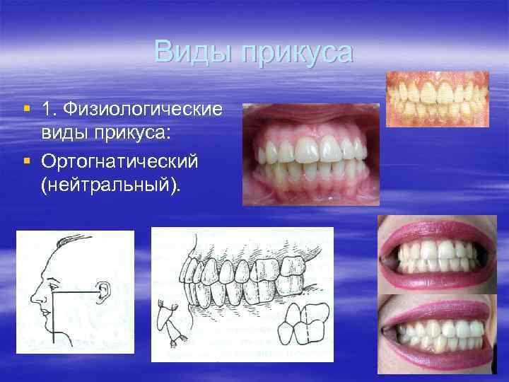 Виды правильных и неправильных прикусов зубов у взрослого человека