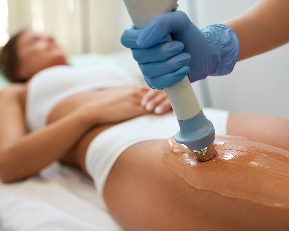 Суть и эффективность ударно-волновой терапии при целлюлите