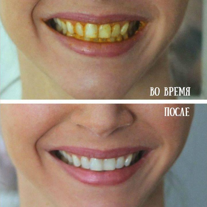 Желтые зубы. причины и методы устранения желтизны