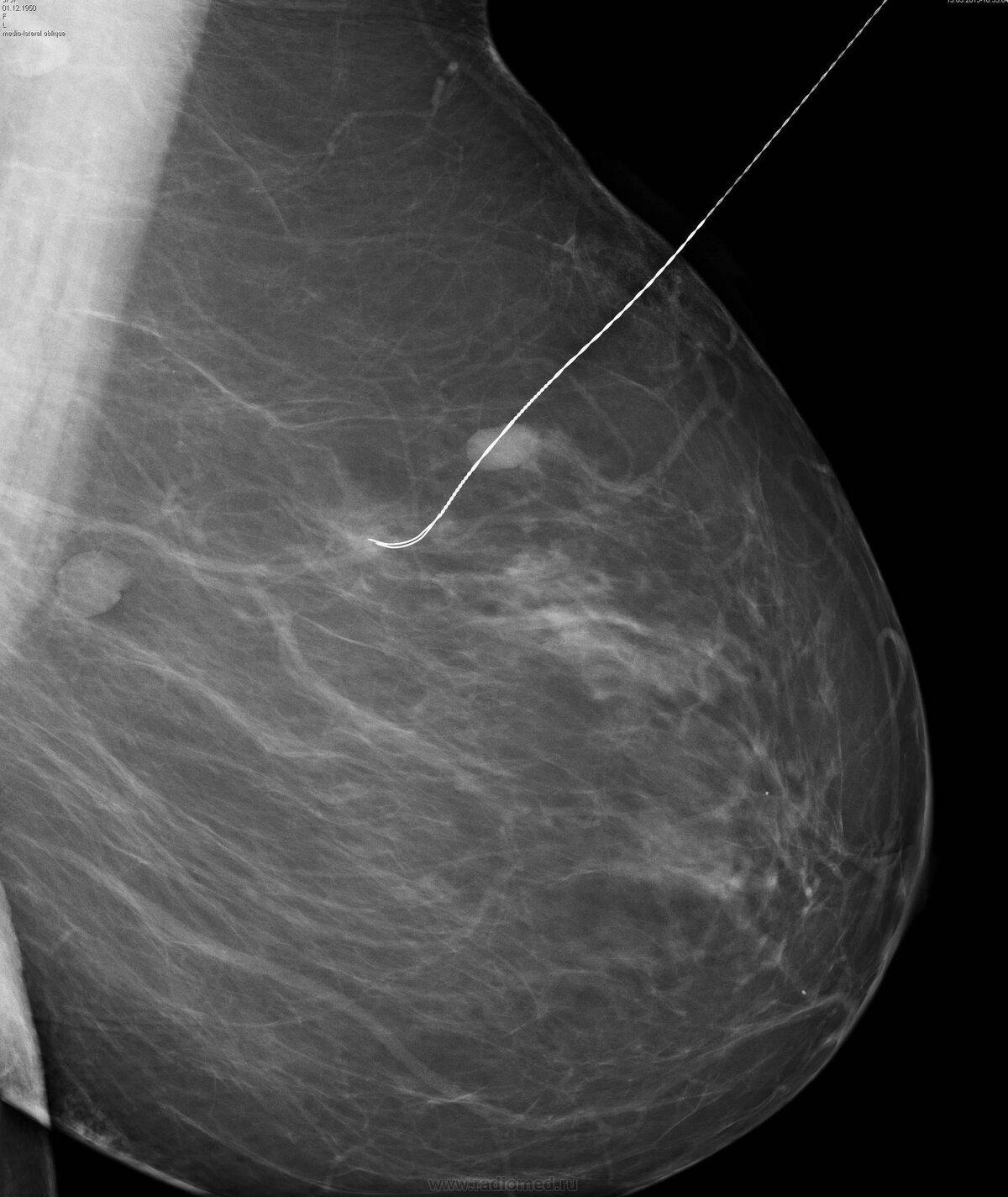 Виды, симптомы, причины, лечение, диагностика и профилактика фиброматоза молочной железы