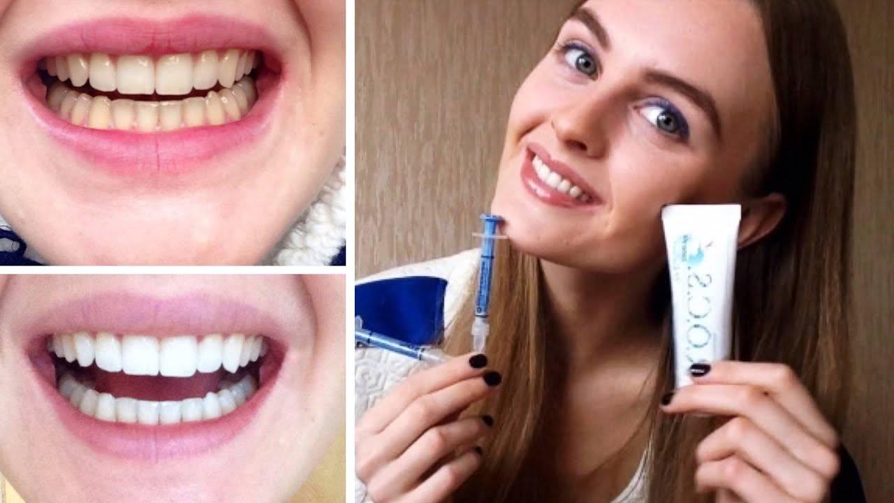 Простые советы, как быстро отбелить зубы в домашних условиях