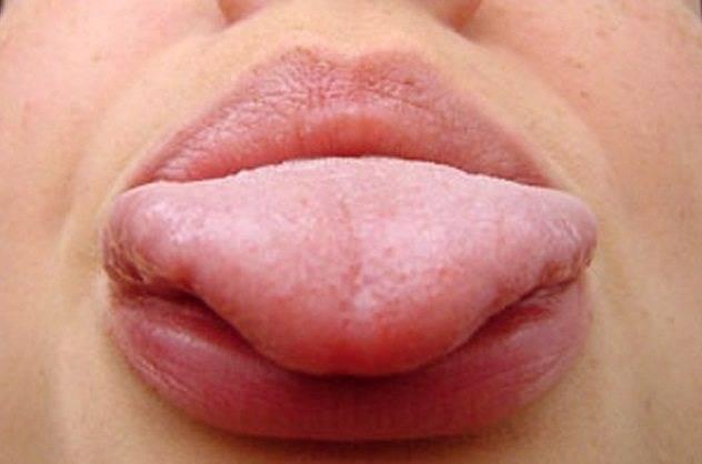Макроглоссия (увеличенный язык) у ребенка: симптомы, причины и лечение
