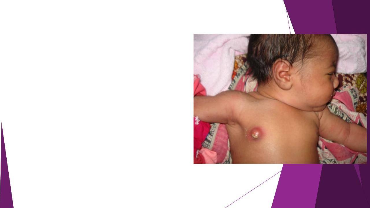 Молочные железы новорожденных: нагрубание и симптомы мастита у грудных девочек и мальчиков. нагрубание молочных желез у новорожденных