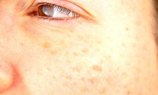 Старческие пятна на коже как избавиться народными средствами