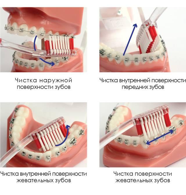 Правильный уход за брекетами: рекомендации стоматологов