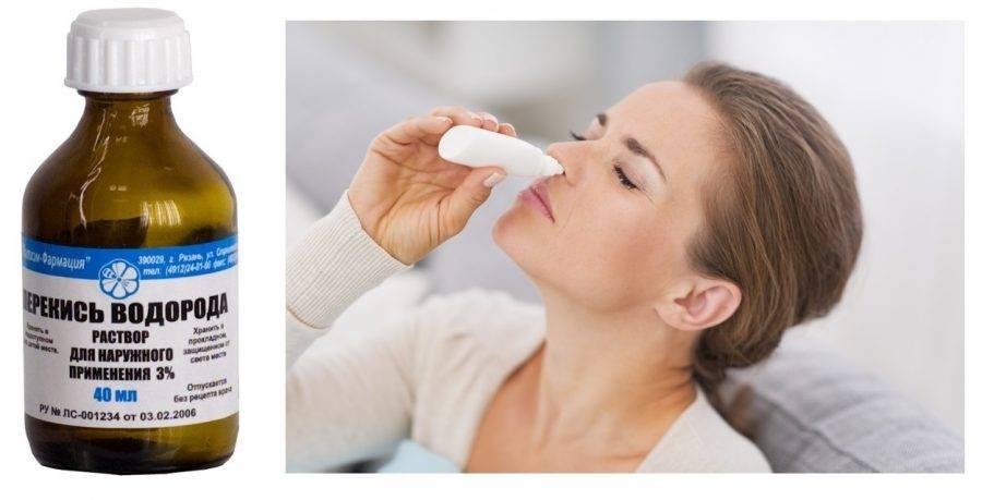 Зачем и как правильно делать полоскания рта перекисью водорода
