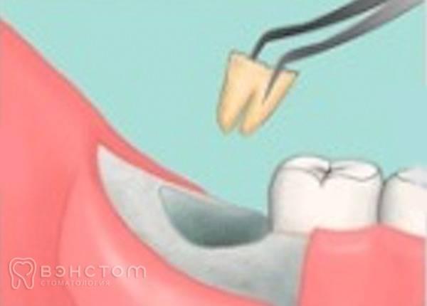 Как избежать неприятного сюрприза: почему ноют зубы после удаления мудрого?