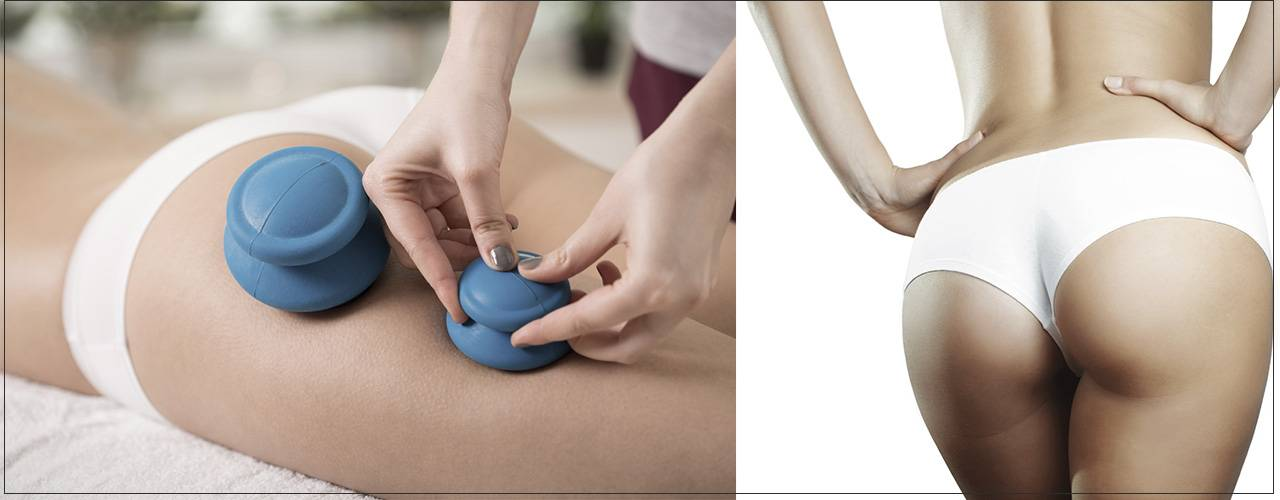 Вакуумный массаж живота: эффективность похудения, правила и способы проведения