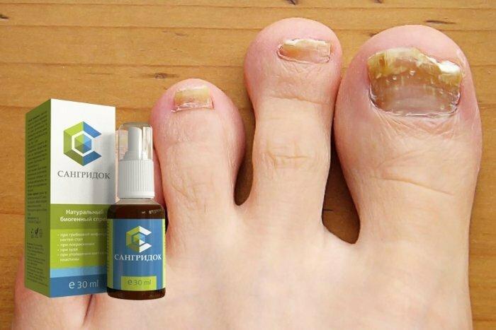 Как выбрать недорогие и эффективные препараты от грибка ногтей