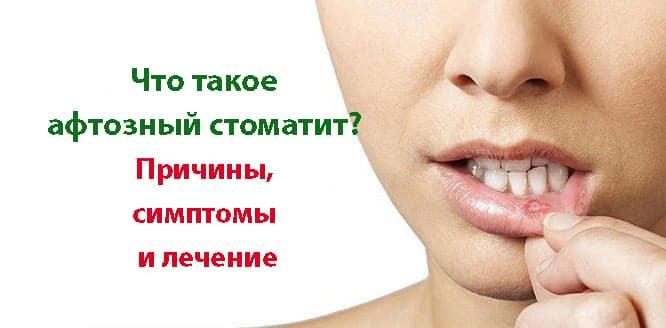 Лечение афтозного (язвенного) стоматита у взрослых и детей