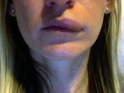 Почему немеет нижняя губа и что при это делать