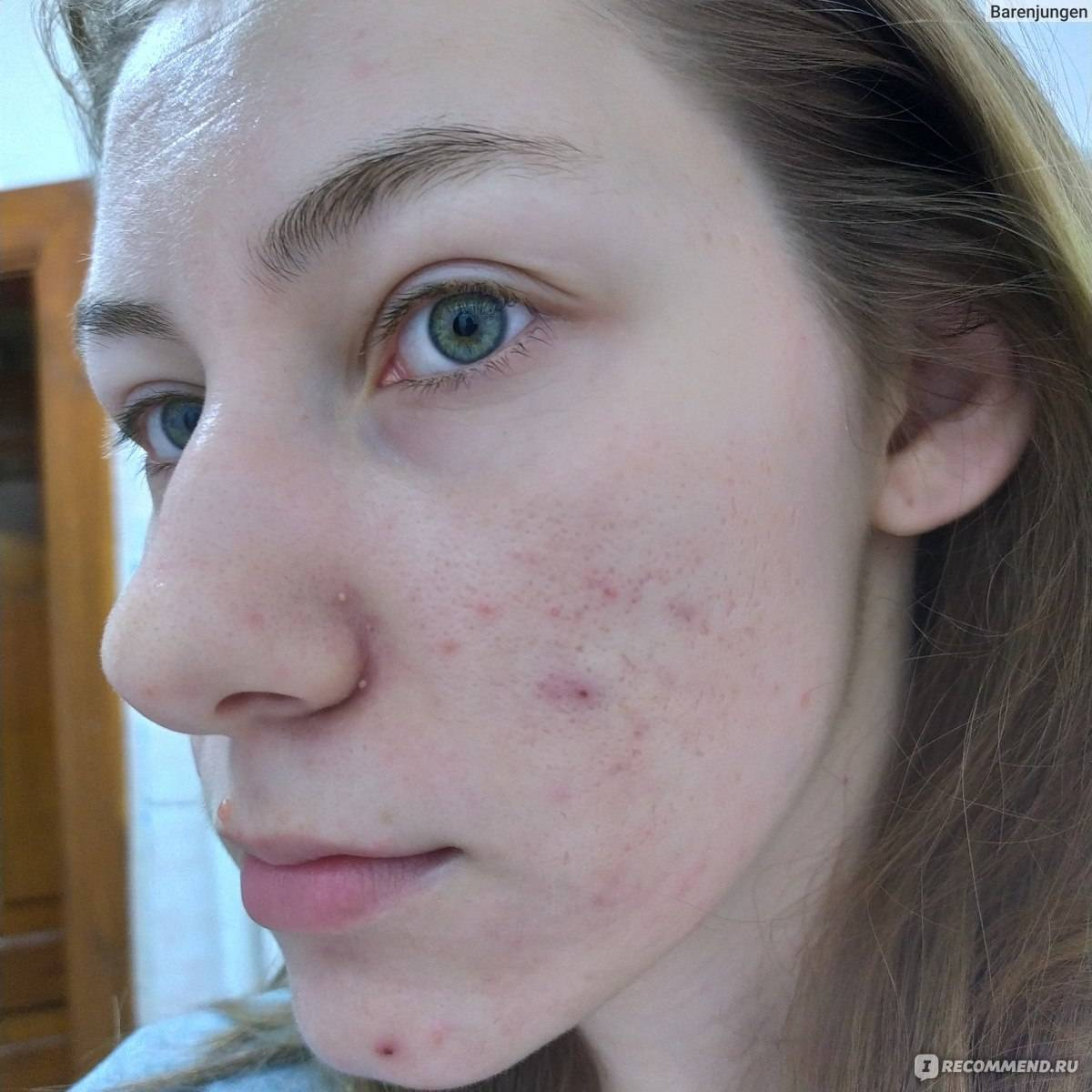 Как выглядит аллергия — обзор самых распространенных симптомов и советы как распознать и вылечить аллергию (75 фото)
