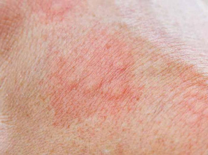Атипичный дерматит