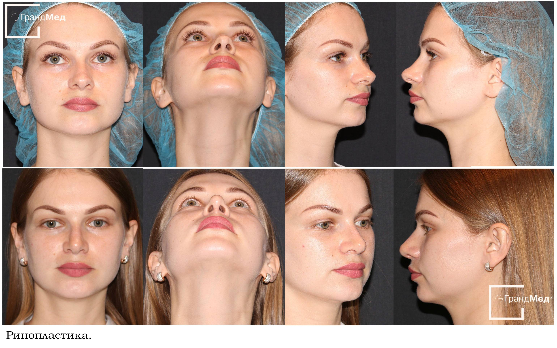 Искривление носовой перегородки как исправить