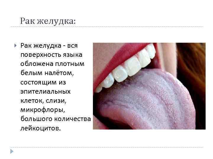 Отпечатки зубов по бокам языка: причины отечности и зубных следов на краях, признаки возможных заболеваний