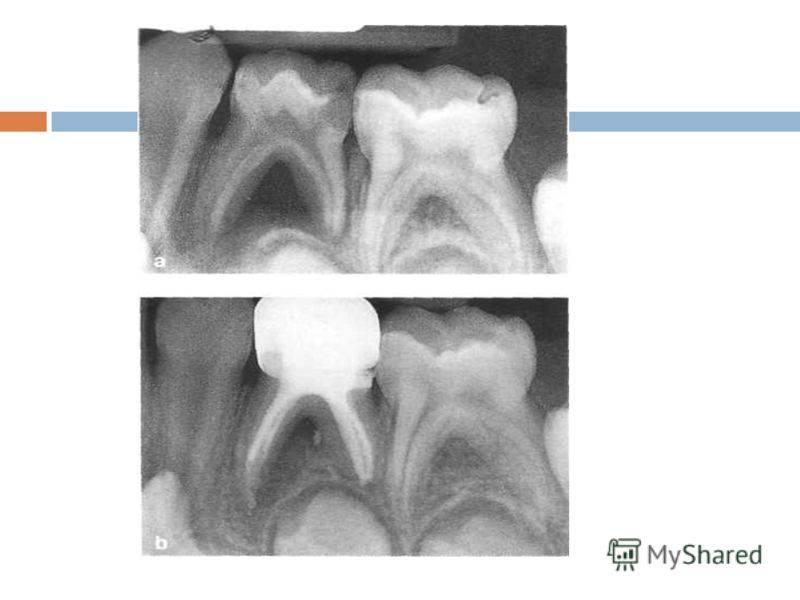 Шанс надолго сохранить зубы: методы лечения пульпита у детей