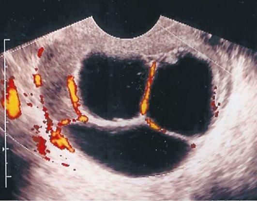 Цистаденома яичника: виды и способы лечения